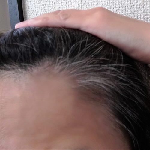 生え際の白髪